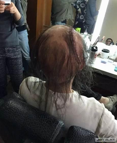 美魔女「毀容禿頂」變咕嚕 嚇死人!
